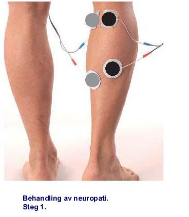 stickningar i fot och ben